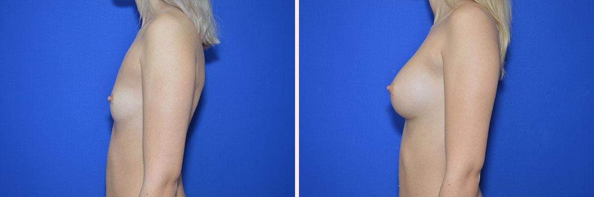 Vorher Nachher Fotos - Plastische Chirurgie | Zentrum für